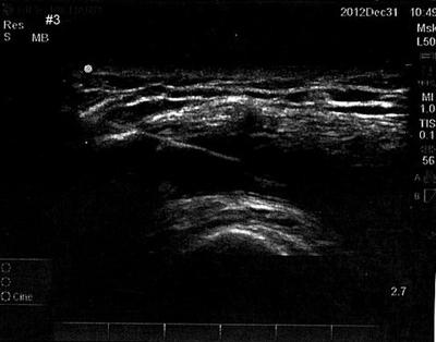 MSK Ultrasound
